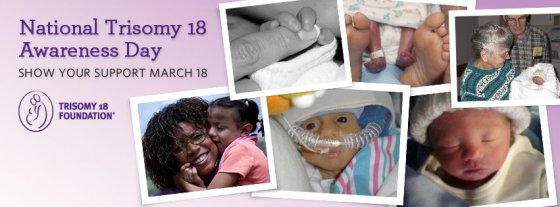 trisomy18awareness